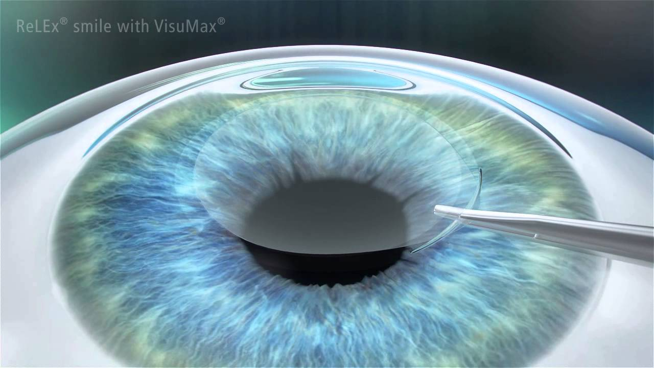 What Is Relex Smile Focus Eye Centre