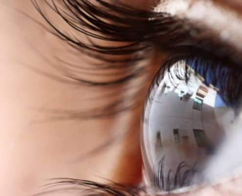 about-laser-eye-surgery